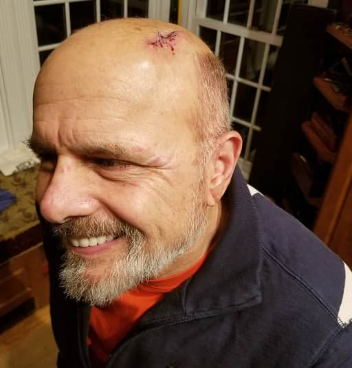 Joe Pantoliano Head Gash After Being Involved In A Horrifying Car Accident, A Porsche Skidded Across The Street And Struck Joe Pantoliano